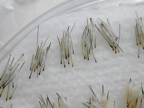 tratamientos médicos, tópicos y quirúrgicos para combatir la alopecia