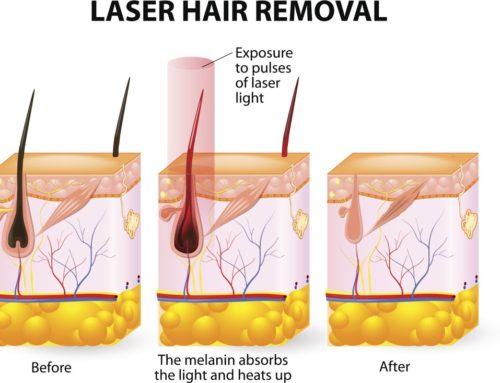 Olvídate del vello con la depilación láser