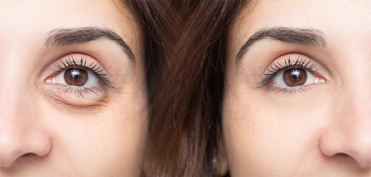 Rejuvenecimiento de la mirada, reducción de ojeras