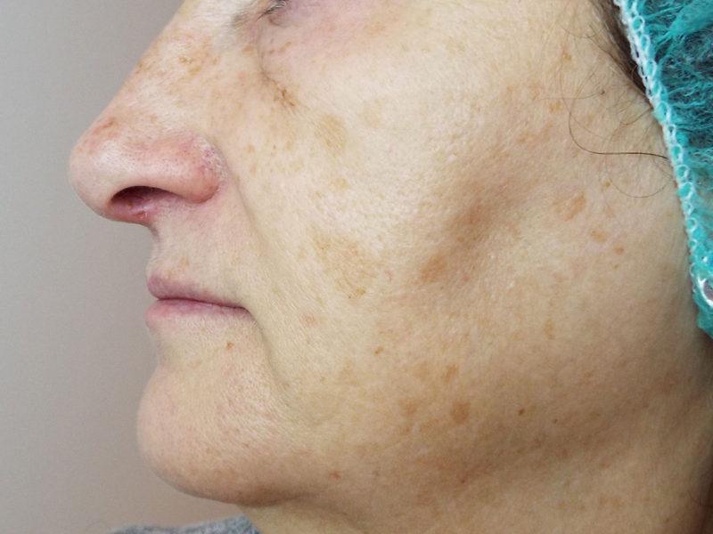 Eliminación manchas faciales-luminosidad