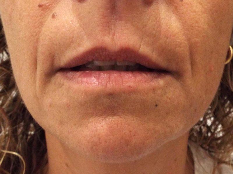Relleno y remodelación labial con ácido hialurónico