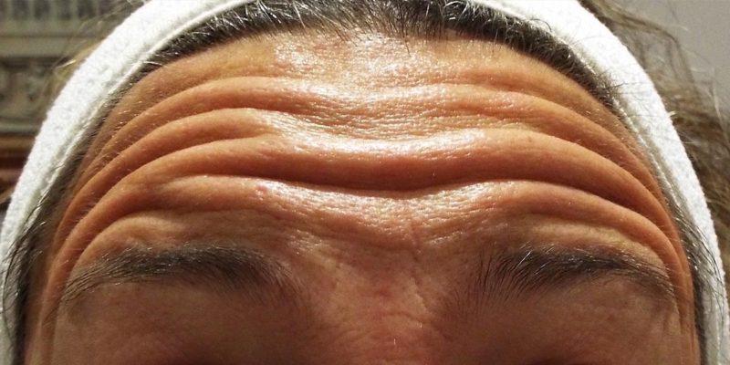 Tratamiento de arrugas frontales con Botox