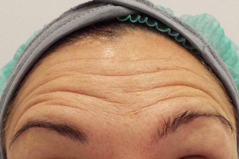 Tratamiento arrugas frontales con Botox