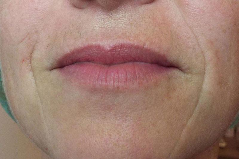 Corrección de arrugas faciales