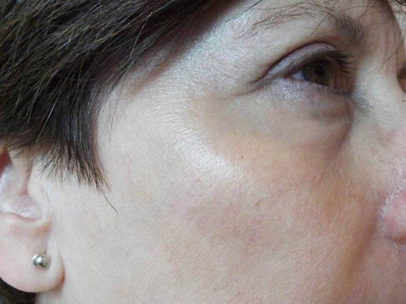 Tratamiento y eliminación léntigos faciales
