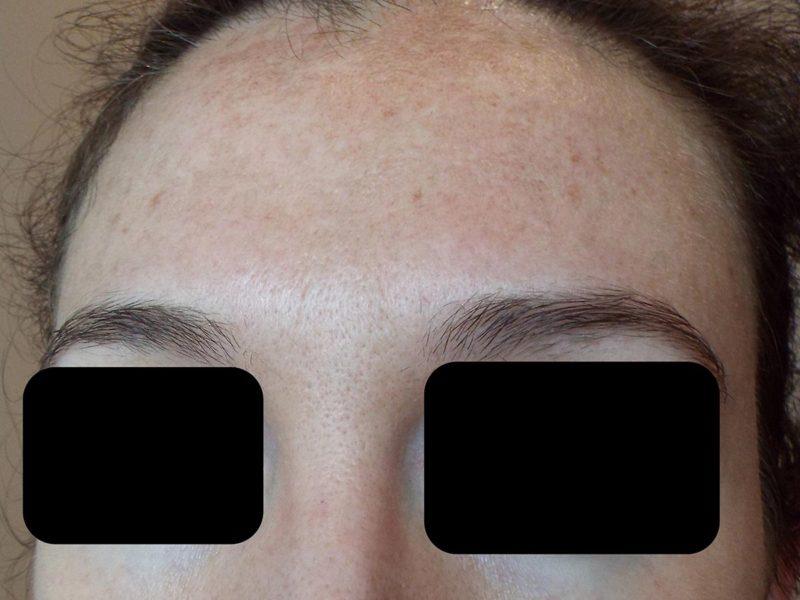 Tratamiento de melasma-manchas faciales