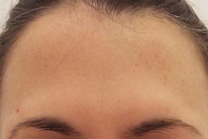 Tratamiento de entrecejo con Botox