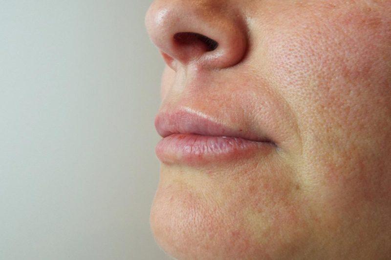 Relleno y remodelación labial