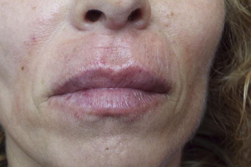 Corrección de arrugas periorales e hidratación labial