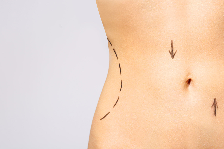 Remodelación del contorno corporal