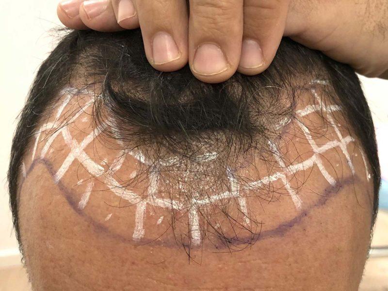 tratamiento trasplante capilar