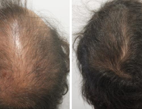 Alopecia androgenética…qué hay de nuevo?