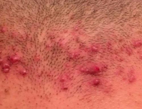 Foliculitis, una indicación para el tratamiento de depilación láser