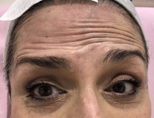 ¿Qué hay de nuevo en medicina estética? Miomodulación